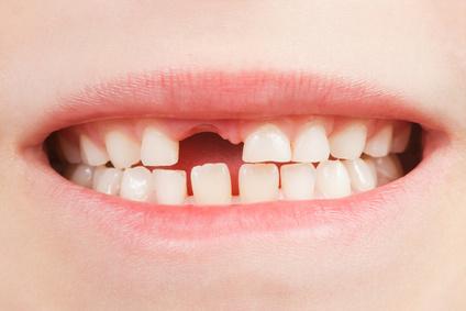 Zahnspange Kinder Lückenhalter