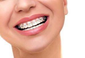 unsichtbare Zahnspange mit Keramik